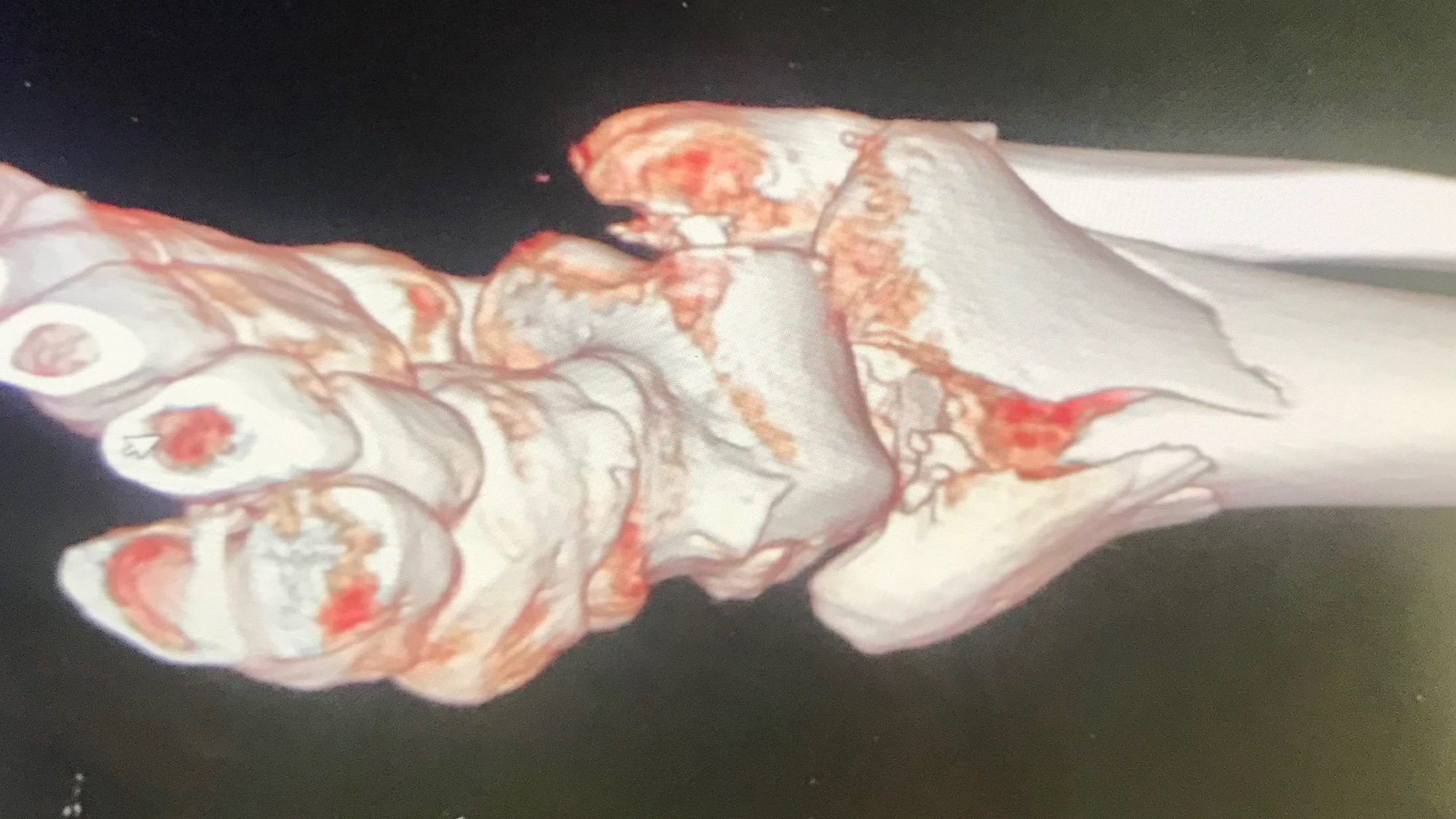 A 3D scan of Cal Crutchlow's ankle in 2018