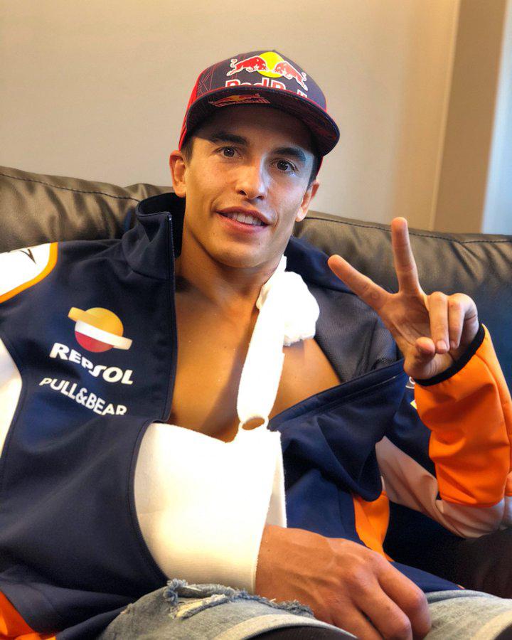 Marc Marquez arm break
