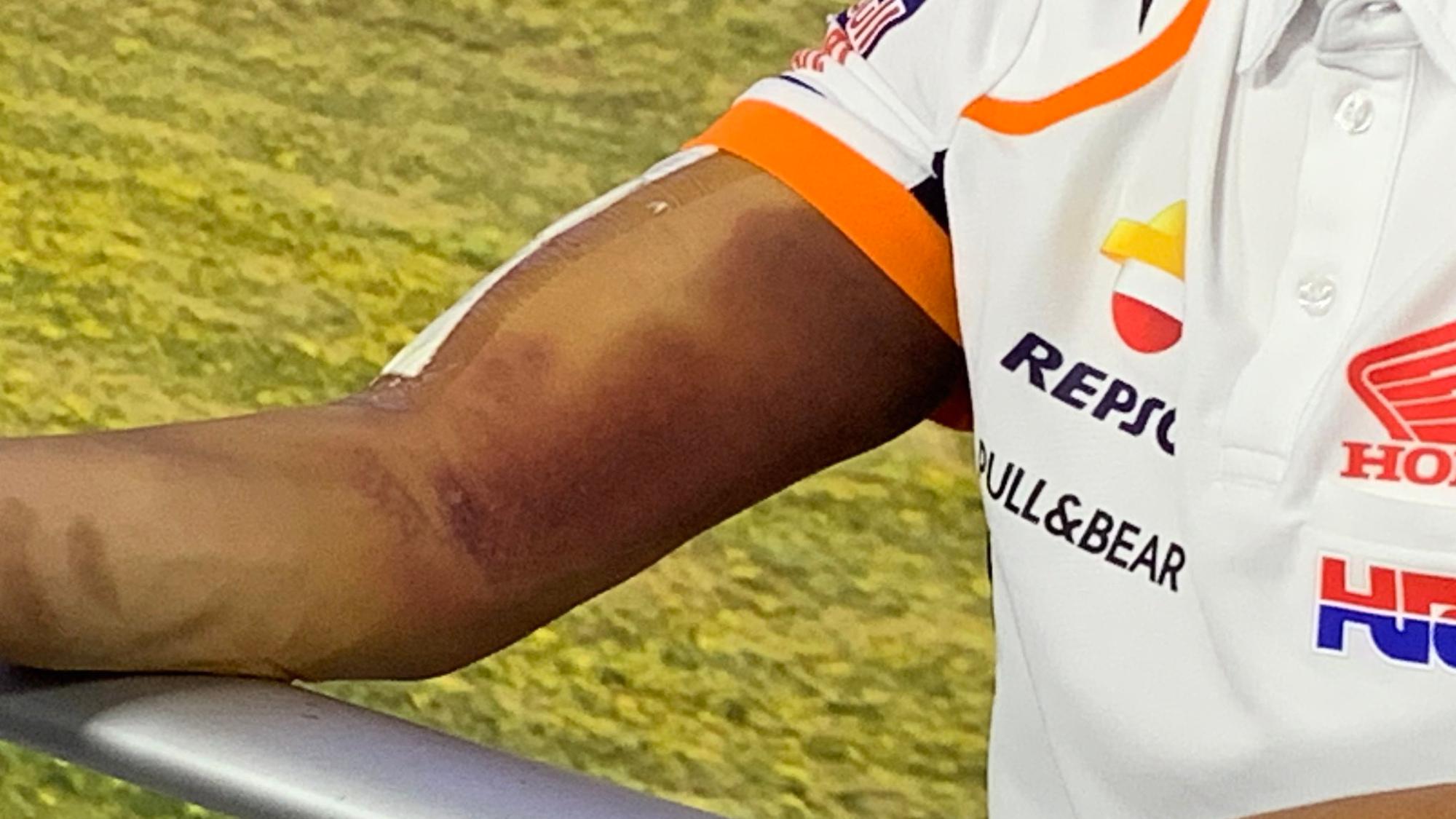 Marc Marquez's arm, MotoGP Jerez 2020